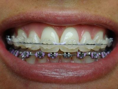 Clear Braces Renick Orthodontics