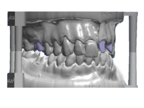Diagnostic Tooth Model